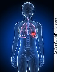 lung cancer - 3d rendered illustration of a female anatomy ...