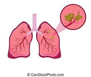 Lung cancer concept on white background.