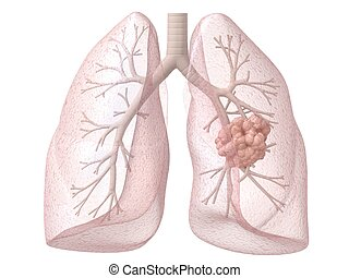 lung cancer - 3d rendered illustration of lung and bronchi...