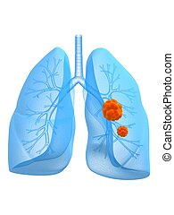 lung cancer - 3d rendered anatomy illustration of human lung...