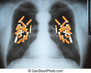 Lung cancer - Effects of cigarette smoking - lung cancer.