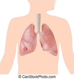 Lung cancer, eps10