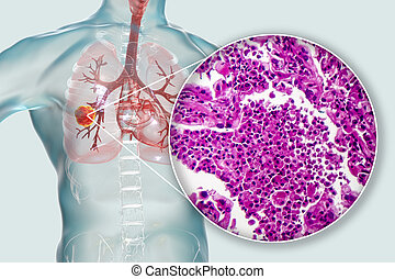 Lung cancer, 3D illustration and photo under microscope. Histopathology light micrograph