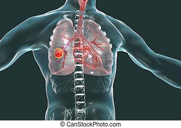 Lung cancer, illustration