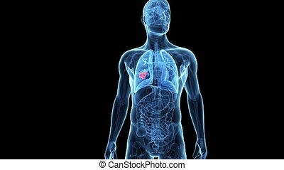 Lung cancer - Medical animation of a male lung - showing...