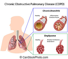Chronic obstructive pulmonary disease, eps8