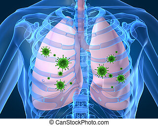 3d rendered illustration of human lung with bacteria