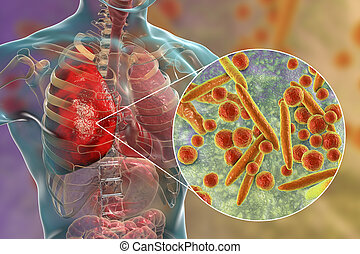 Lung infection caused by bacteria Mycoplasma pneumoniae
