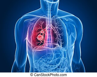 3d rendered x-ray illustration of a human torso with tumor in lung
