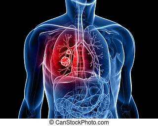 3d rendered x-ray illustration of ahuman torso with tumor in lung