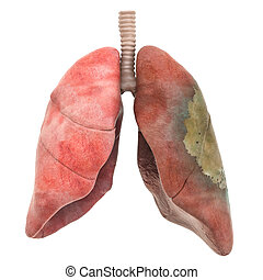 Lungs disease, infection concept, 3D rendering