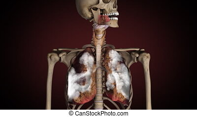 Lungs of smoker, turns from healthy to sick.