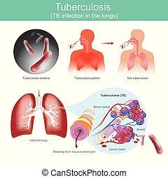 lungs., tb, tuberkulose, infektion