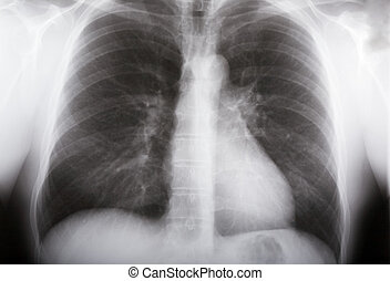 xray picture of human male lungs