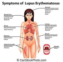 lupus, erythematosus, anatomie humaine, symptômes