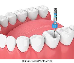 mâchoire, dent, fichier, render, endodontic, 3d