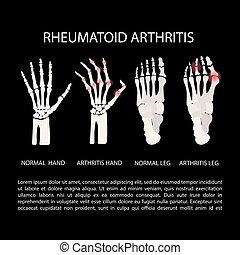 mão, artrite, reumatóide, educação, medicina, perna, ...