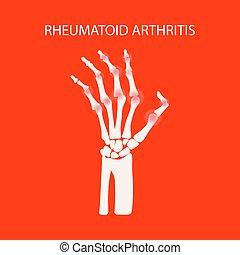mão, artrite, reumatóide, educação, medicina, vetorial, ...