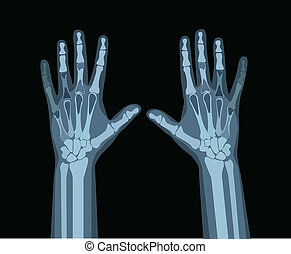 mãos, raio x