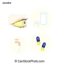 médico, tratamientos, icterus, ictericia, o, prevención
