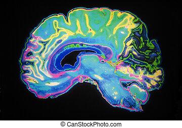 mózg, barwny, mri, ludzki, skandować