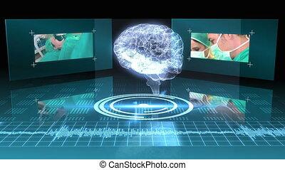 mózg, graficzny, obrotowy