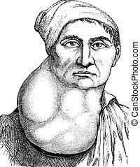 múltiplo, illustration., diccionario, labarthe, vendimia, cuello, -, o, 1885., engrandecido, linfa, medicina, paul, lymphoma, grabado, nodos, usual