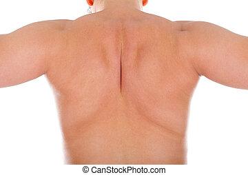 músculo, costas, inflamação