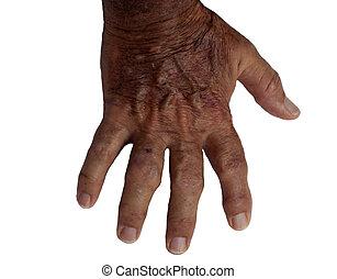 macho idoso, mão, com, artrite reumatóide