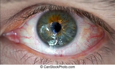 Macro video of human eye with currency sign