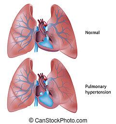 magas vérnyomás, tüdő-, eps10