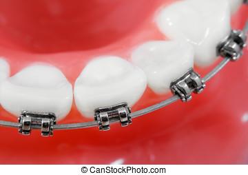 makro, dental, seicht, feld, tiefe, honigraum, hosenträger