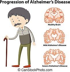 maladie alzheimer, progression