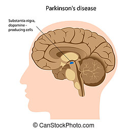 maladie, parkinson's, eps8