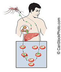 malaria, infection