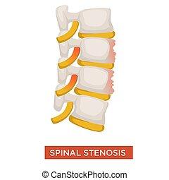 malattia, spina, malattia, vertebrale, spinale, stenosi, o