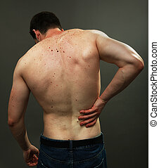 Male back skin full of moles