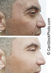 male eyes wrinkles before and after treatment