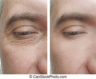 male face wrinkles before and after correction