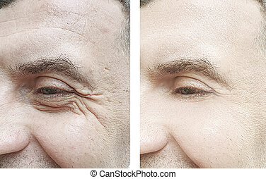 male face wrinkles before and after treatment