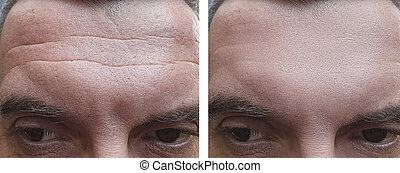 male face wrinkles before and after treatments