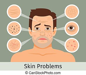 Male facial skin problems