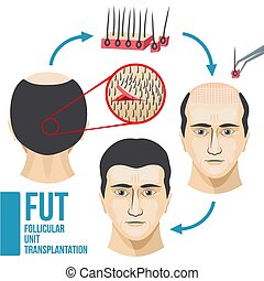 Male hair loss treatment medical vector infographic