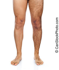 Male hair removal on legs - Legs of a man, his right leg is...