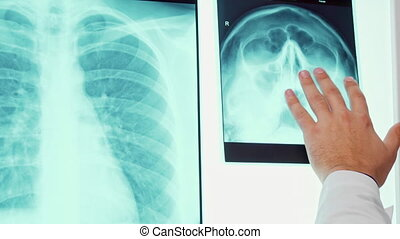 Male hand moves on the x-ray