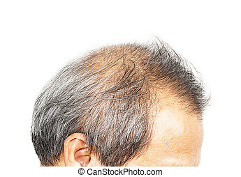 Male head with hair loss
