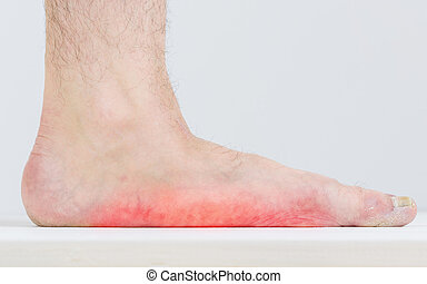 Male leg with strongly pronounced flat feet. - Men with...