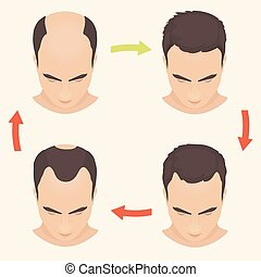 Male pattern baldness set - Male hair loss stages set. Man...