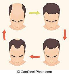Male pattern baldness set