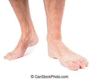 Male person with hairy legs